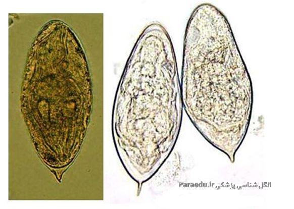 مورفولوژی شیستوزوما هماتوبیوم Schistosoma haematobium ...