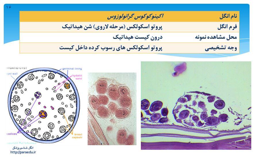 Echinococos granulosus3 اکینوکوکوس