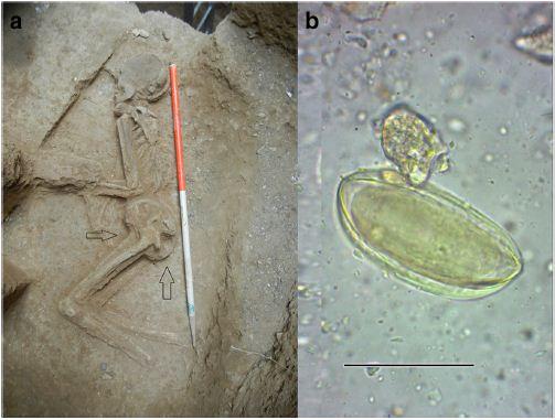 Paleoparasitological evidence of pinworm زن هفت هزار ساله تهرانی
