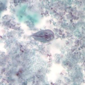 مورفولوژی تروفوزوئیت ژیاردیالامبلیا، رنگ آمیزی تری کروم