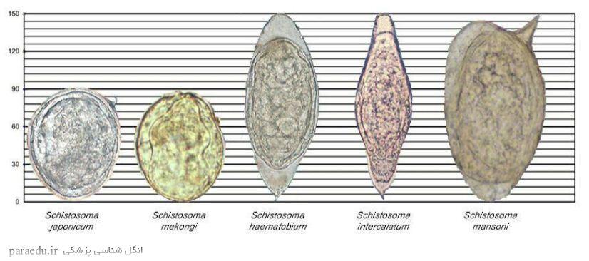 مقایسه شکل و اندازه تخم کرم ها