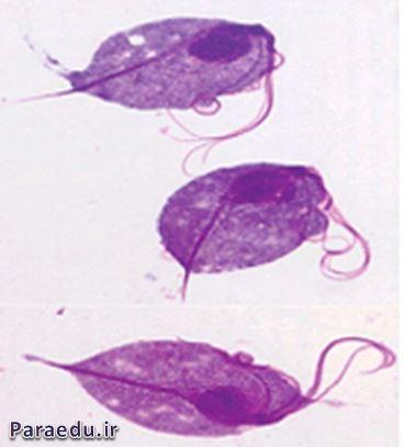 تروفوزئیت مورفولوژی تریکوموناس واژینالیس، رنگ آمیزی گیمسا، میکروسکوپ نوری
