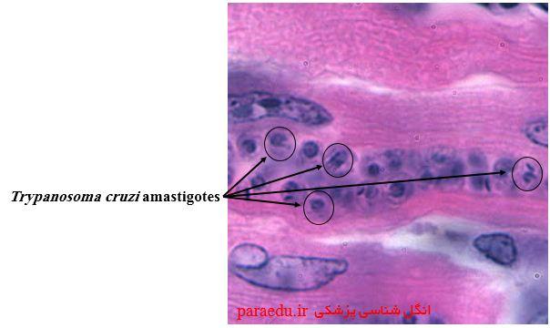 آمستیگوت تریپانوزوما کروزی Trypanosoma cruzi amastigotes